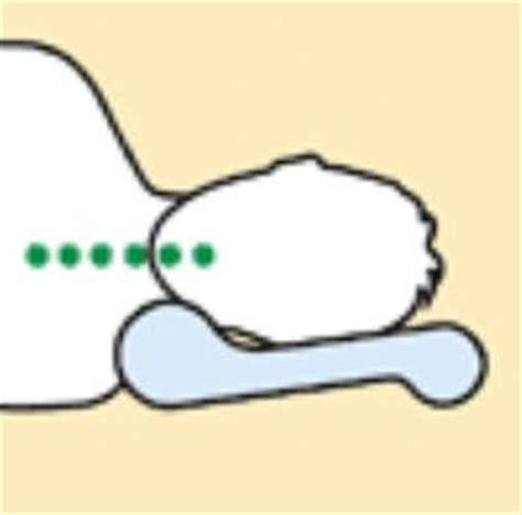sfinterotomia laterale interna post operatorio cuscino cervicale guanciale viaggio cu02 171 cuscini