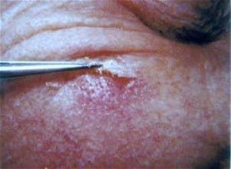 rug rash carpet tack tin tack sign dle dermatology carpets signs and tack
