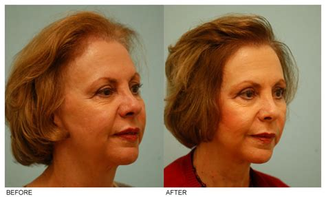 the amazing hairstyles for high hairlines women intended high hairline for woman pics women s hair loss chicago
