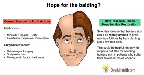 how male pattern baldness works hair loss cure this piece is critically important for