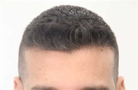 fue results with short hair dr rahal fue results on hair transplant network dr rahal