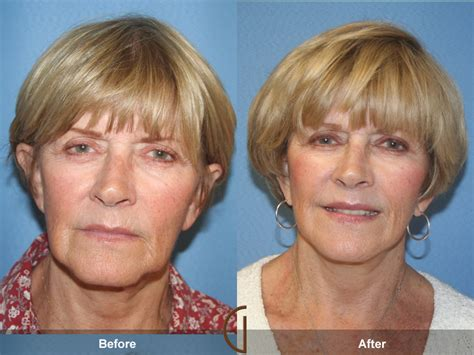 photo gallery before and after cosmetic surgeon in the before after facelift 55 orange county cosmetic surgeon