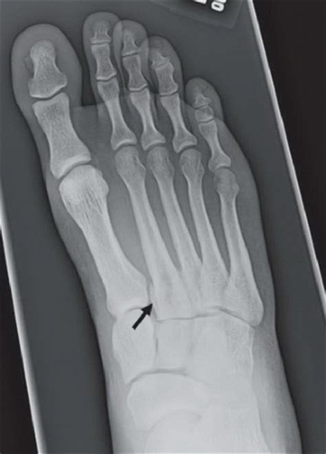 bunk bed fracture lisfranc fracture dislocation radiology key