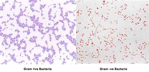 what color is gram positive gram staining principle procedure interpretation