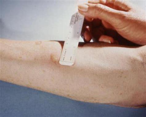 test di mantoux positivo scuole seragnoli tbc alla materna oggi risultati test