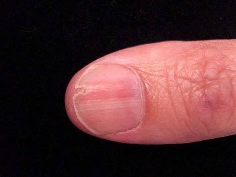 nail bed melanoma nail bed melanoma pictures photos