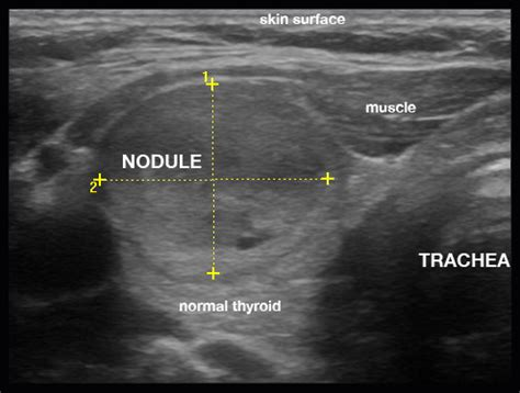 nodulo mobile al mobile thyroid ultrasound