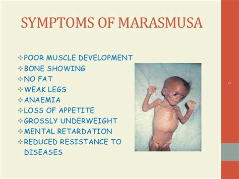 carbohydrates deficiency deficiency diseases ppt by amulya s d