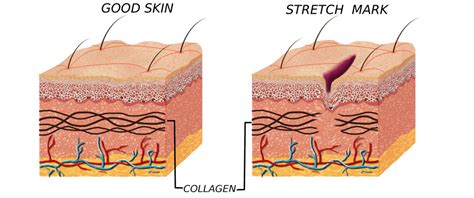 can you dye the skin on healthcare simulators get rid of stretch marks for good national laser