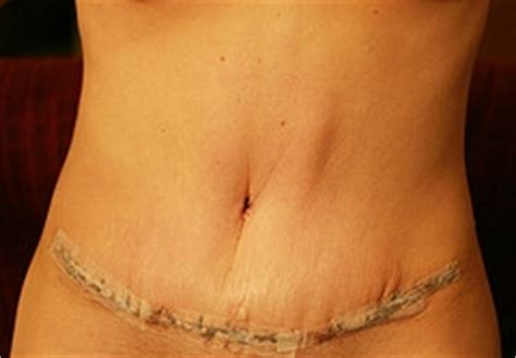 tummy tuck scar healing scar treatment information