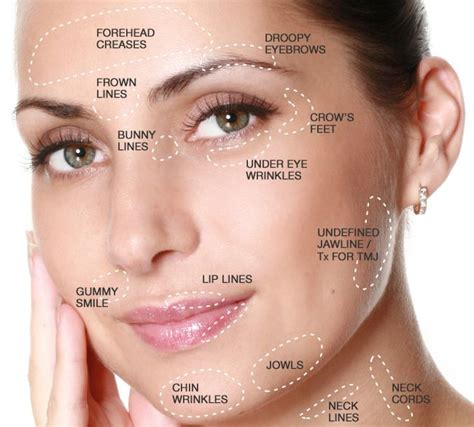 Masker Botox 25 best ideas about botox forehead on wrinkles forehead wrinkle treatment and
