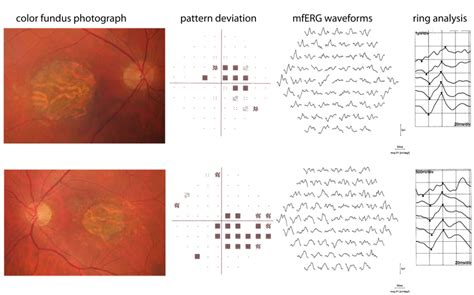 pattern dystrophy erg electroretinogram in hereditary retinal disorders intechopen