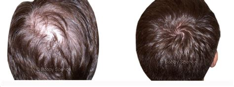 minoxidil before and after male salon in maryland specialize in hair loss full sew in
