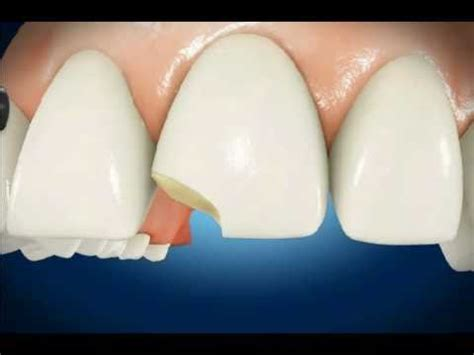 diy dental bonding chipped tooth elaegypt