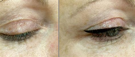 tattoo eyebrows exeter tattoo removal beauty within medi spa male models picture