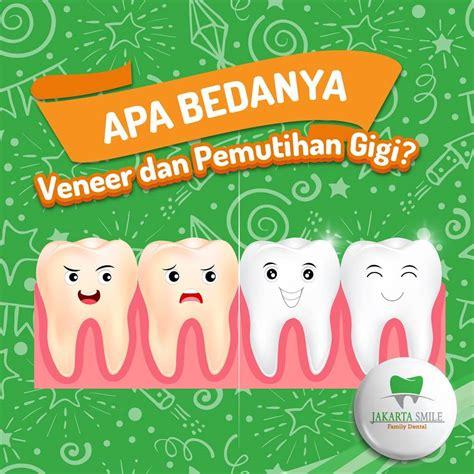 Pemutihan Gigi Di Jakarta Smile apa bedanya veneer dan pemutihan gigi jakarta smile
