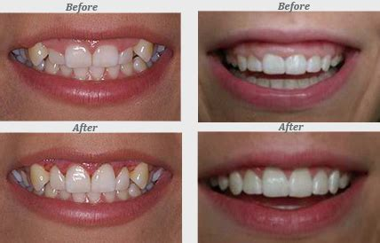 what color should gums be what color are gums healthy images