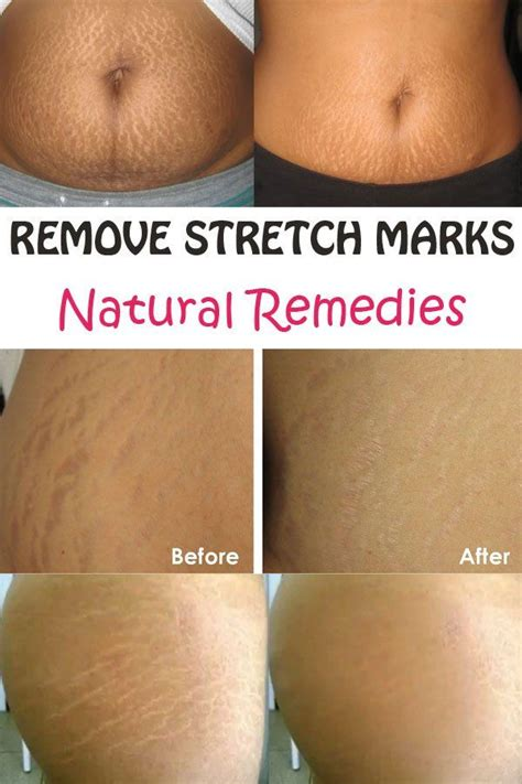 Detox For Stretch Marks by 17 Best Images About Info On Essential Oils