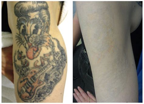 tattoo removal dc area removal skin technology
