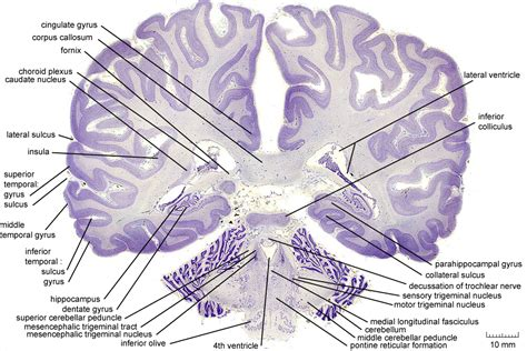 coronal section of brain labeled coronal level 2500 as cell stain