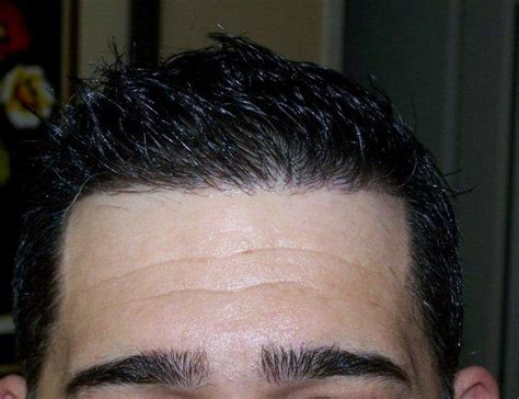 how thick is 1000 hair graft alvi armani fue 1 000 graft result hair transplant