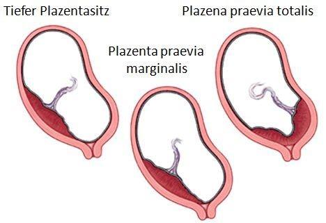plazenta praevia totalis wann kaiserschnitt st 246 rungen der plazenta schwangerschaftsfahrplan de