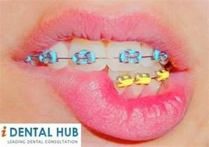 colorful braces average cost of braces for teeth brace color wheel