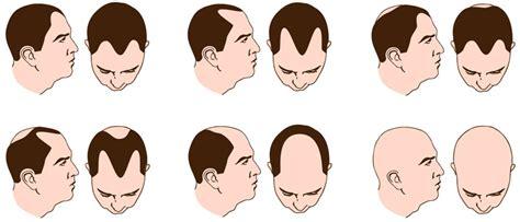 male pattern baldness shape male hair loss knudsen com au