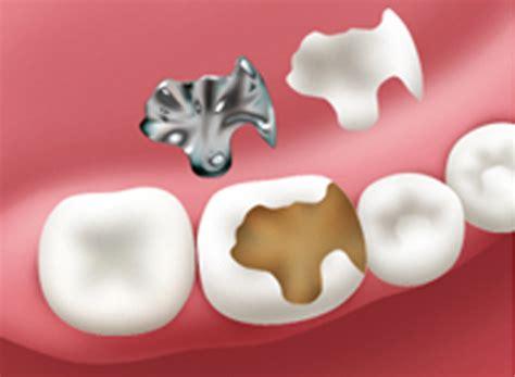 carie interna sintomi otturazioni dentali