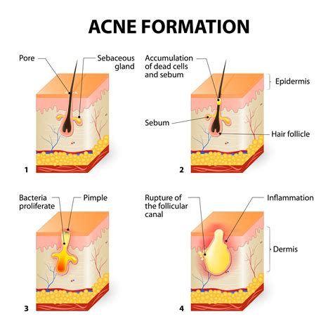 cystic acne diagram what is acne acne prone skin care