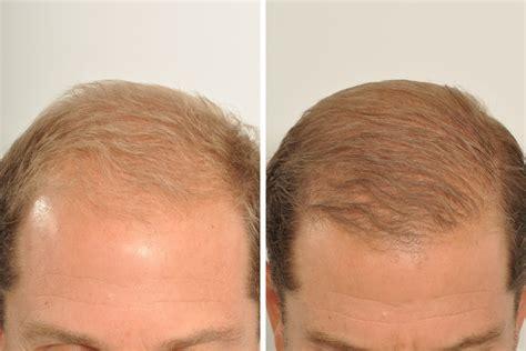 hair transplant center nyc hair transplantations nyc hair restoration hair transplant surgery for men in new