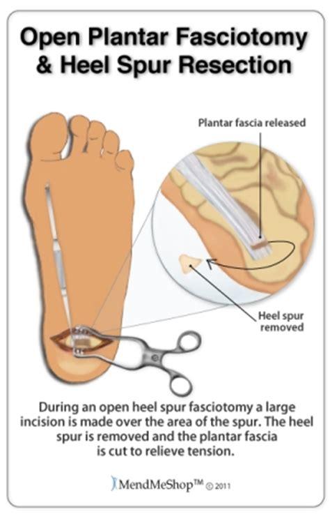 plantar fasciitis surgery and post operative rehabilitation