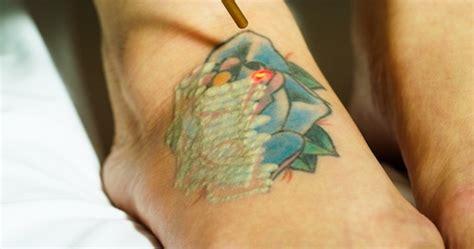 how many treatments will i need to remove my tattoo