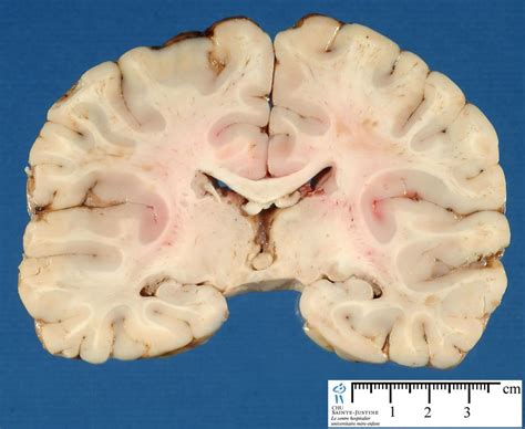 frontal section of brain 301 moved permanently