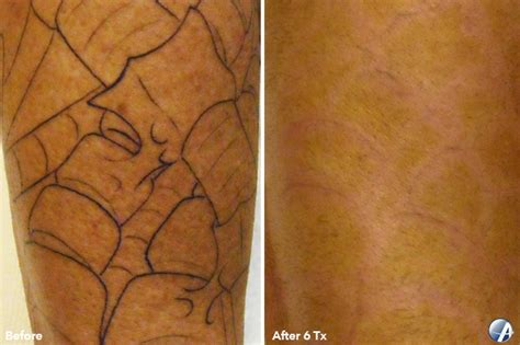 tattoo removal wichita ks spider web 600c laser removal l laser toenail