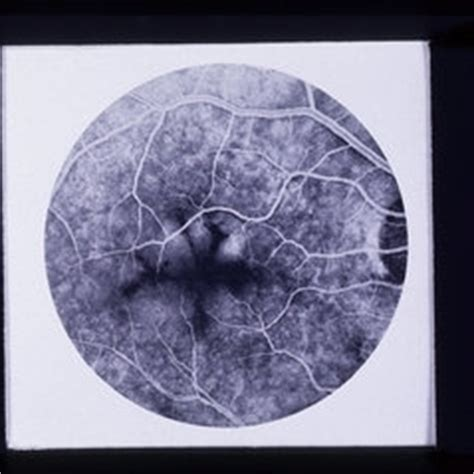 shaped pattern dystrophy discover images retina image bank