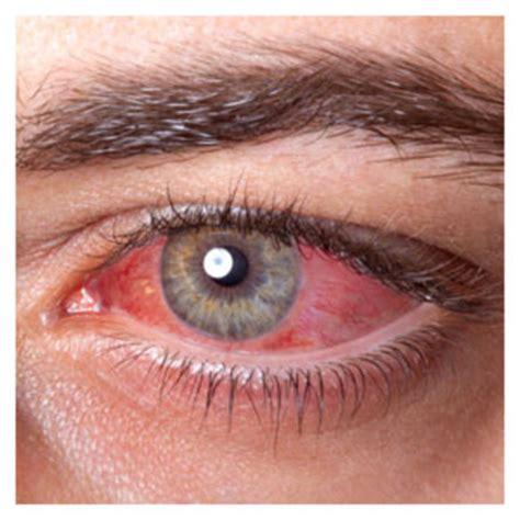Imagenes Ojos Con Conjuntivitis | conjuntivitis imagen foto