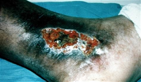c protein deficiency symptoms thrombotic disease due to protein c deficiency causes