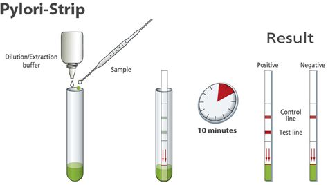 Helicobacter Pylori Stool Test by Pylori Dipstick Against Helicobacter Pylori Pathogen