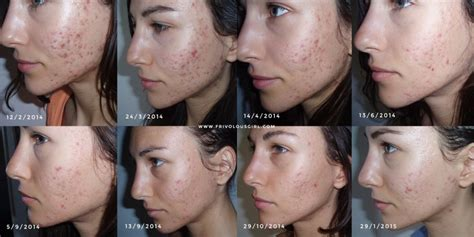 Cystic Acne Detox Diet by How I Cured My Cystic Acne Update 1 Year After Probiotics