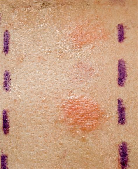 skin allergies allergy testing nyc ageonics