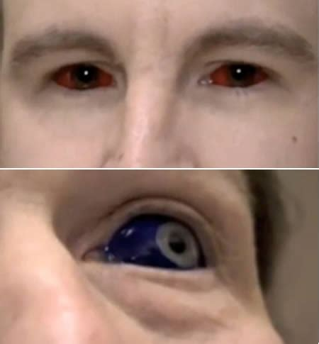 eye tattooing 10 craziest new types of tattoos eye teeth