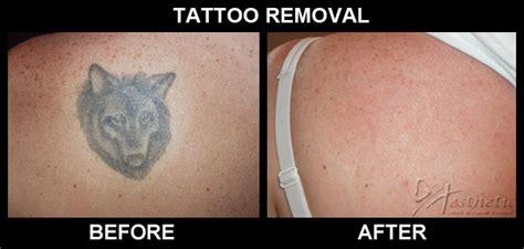 tattoo removal pittsburgh pittsburgh permanent makeup tattoo removal mugeek vidalondon