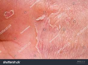 eczema on with skin peeling stock photo 7891168