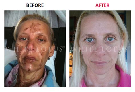 microneedling specialists before and after