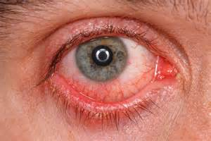 martin eye problem conjunctivitis causes symptoms treatment avc