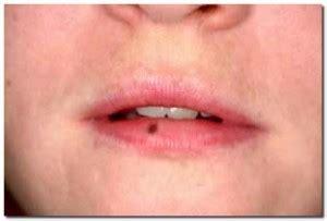 gonfiore interno bocca macchia nera interno guancia cura della pelle