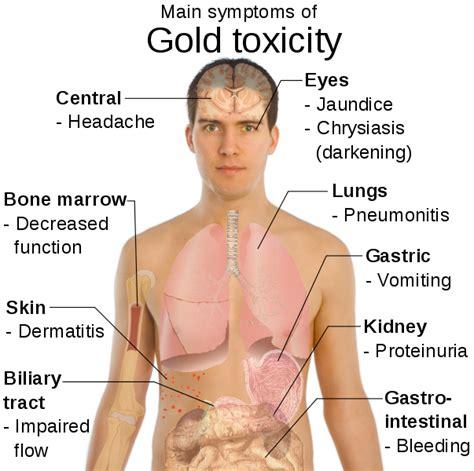 poisoning symptoms symptoms of gold poisoning