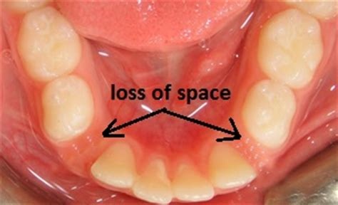can they pull teeth in the emergency room baby teeth pediatric dentistry in allen tx space maintainer