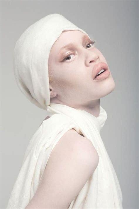 Diandra Expand diandra forrest american model albinos